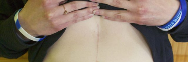woman holding up shirt to show scar on stomach