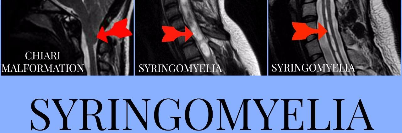 photo of x rays with syringomyelia