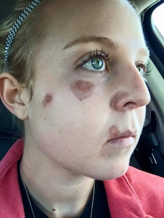 girl showing red marks on her face