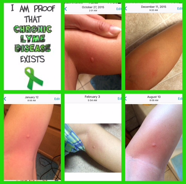 images of lyme disease