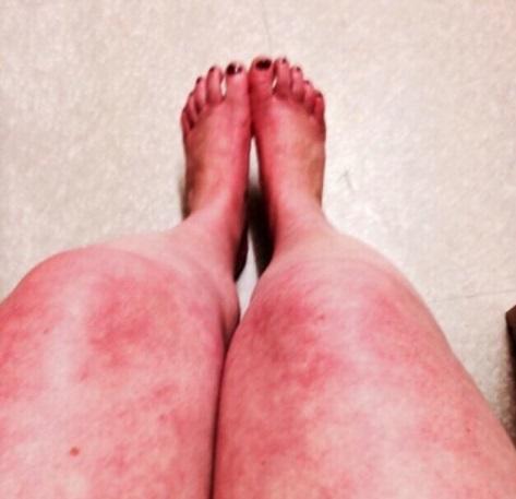 lacy cobweb rash called livedo