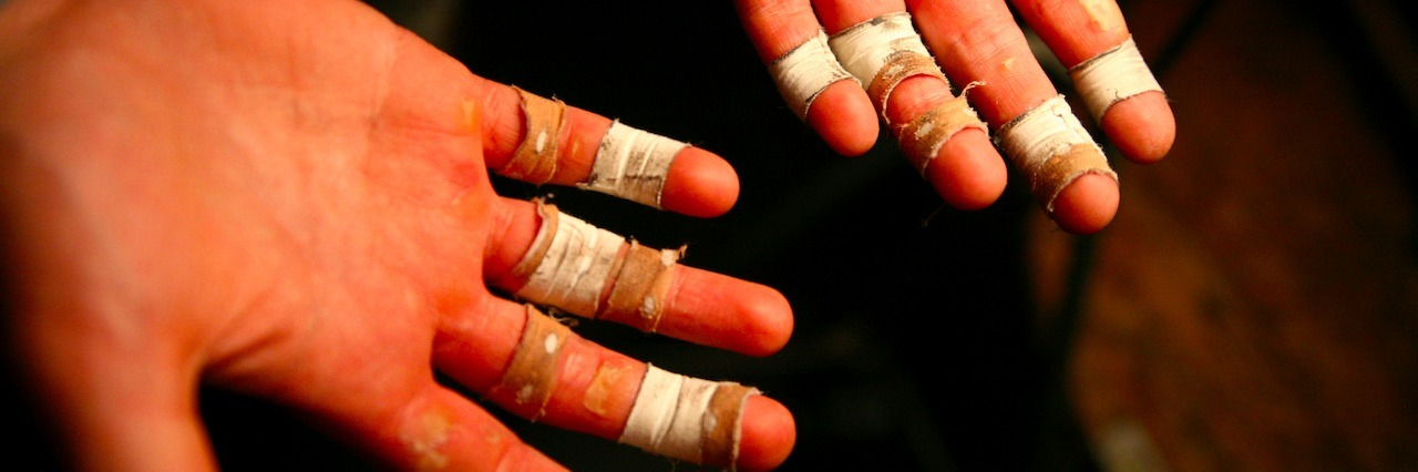 Hands with bandages