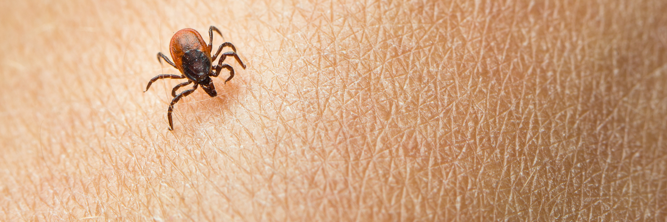 tick crawling on a person's skin