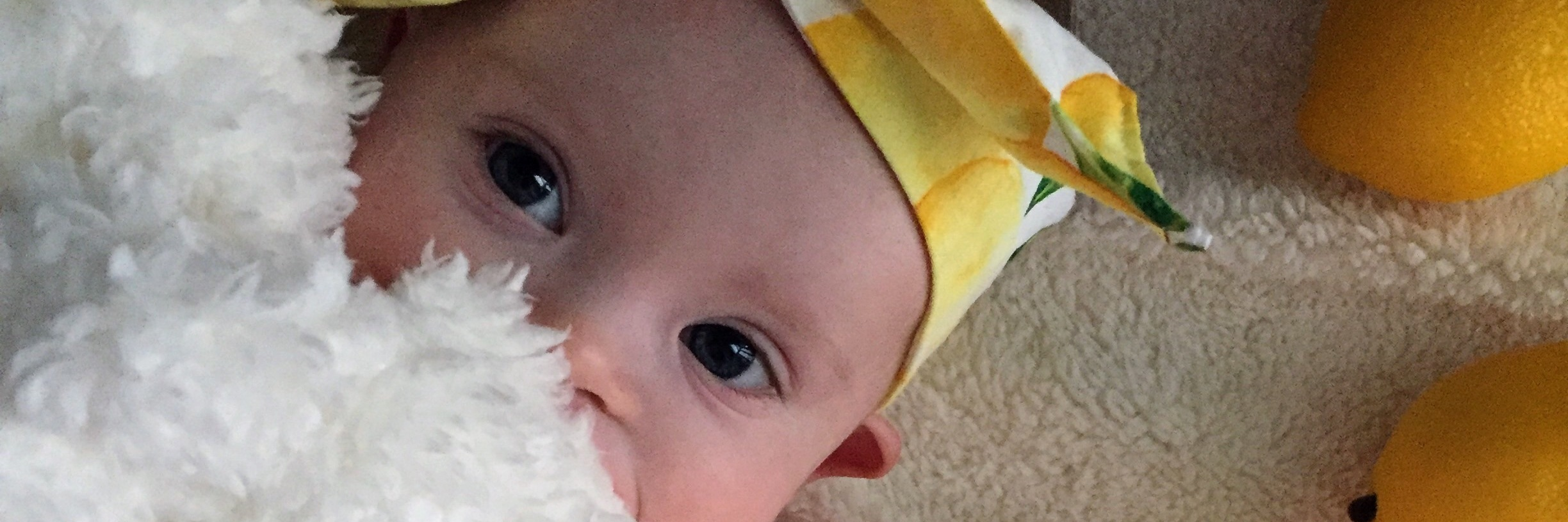 "Little girl with Down syndrome wearing a yellow bow on her head and a white blanket covering her mouth, as if she was playing ""pick-a-boo"""