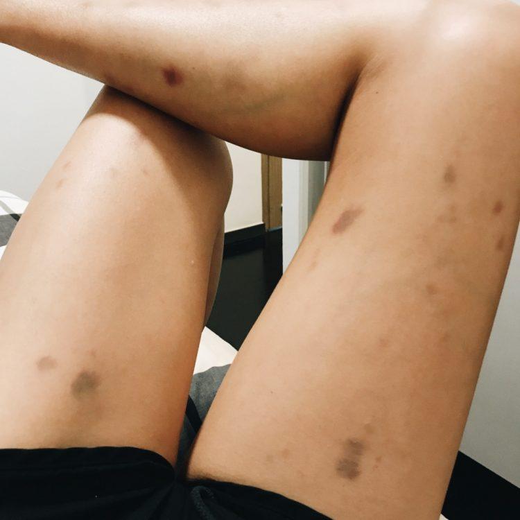 bruises on legs
