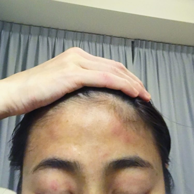 bruises on forehead