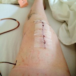 seven-inch scar down a woman's knee