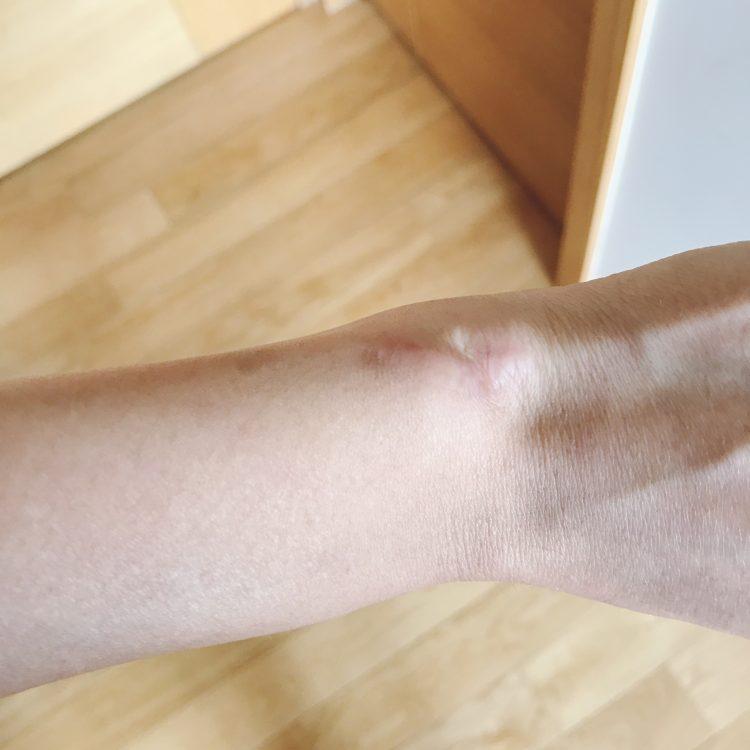 scar on wrist