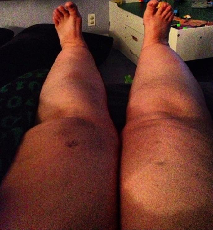 woman's legs swollen due to lipedema