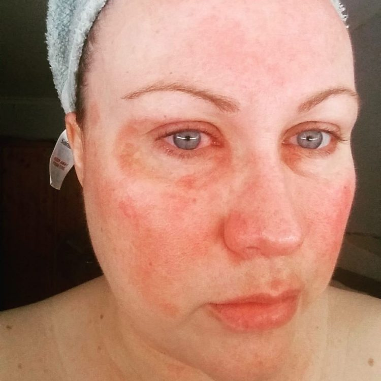 woman with scars on her face from lupus