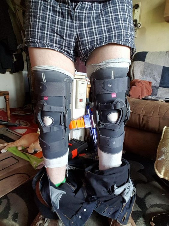 man with knee braces on both legs