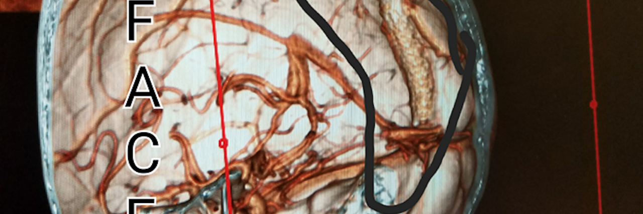 IMAGE-3d recreation from recent CTV scan. Stent is circled, face was cut off digitally.