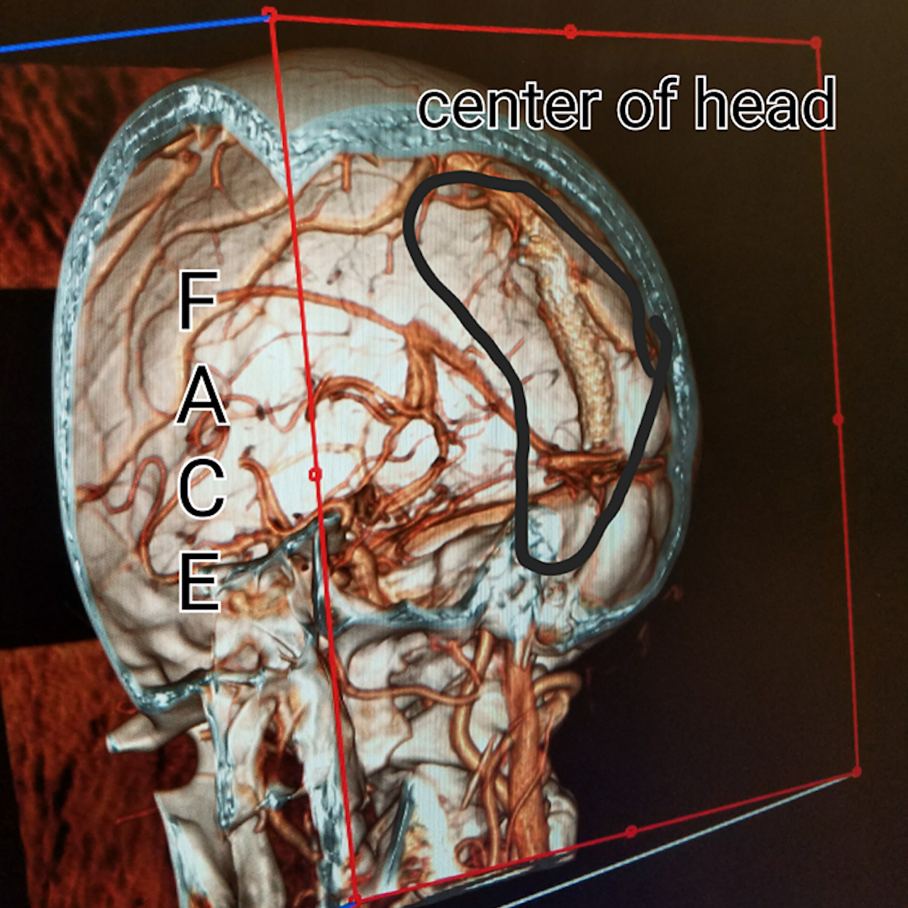 My First Year With a Stent in My Brain for Intracranial