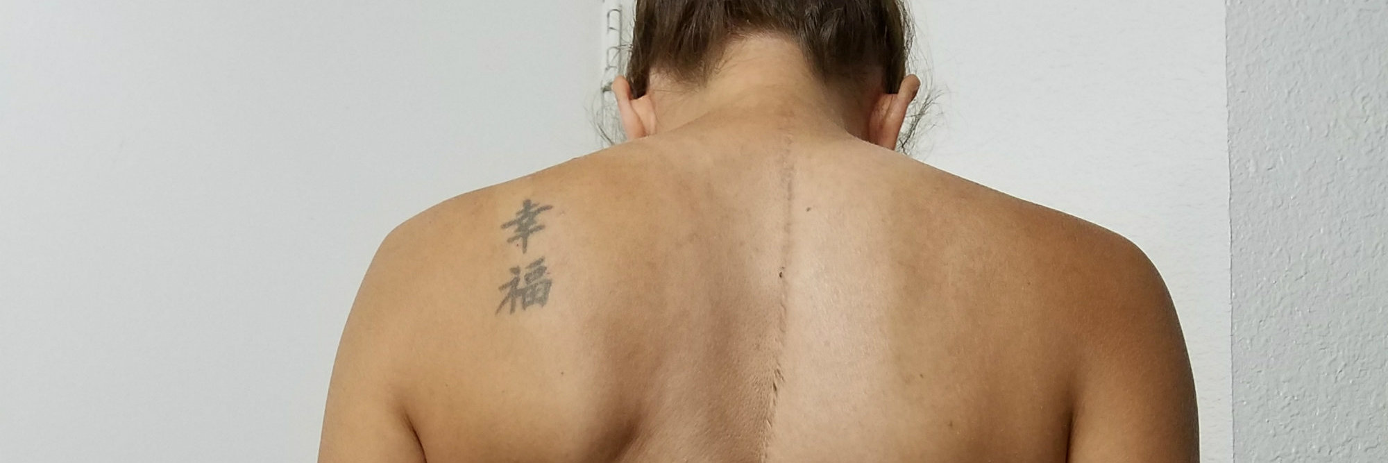 woman shows the hump on her back from scoliosis
