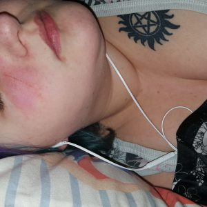 woman lying down with her eyes closed after a seizure