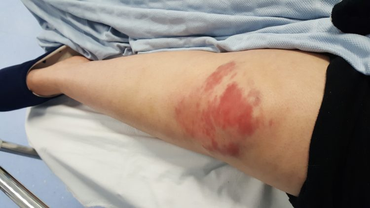 large bruises and wounds on a woman's knee from falling down the stairs after a seizure