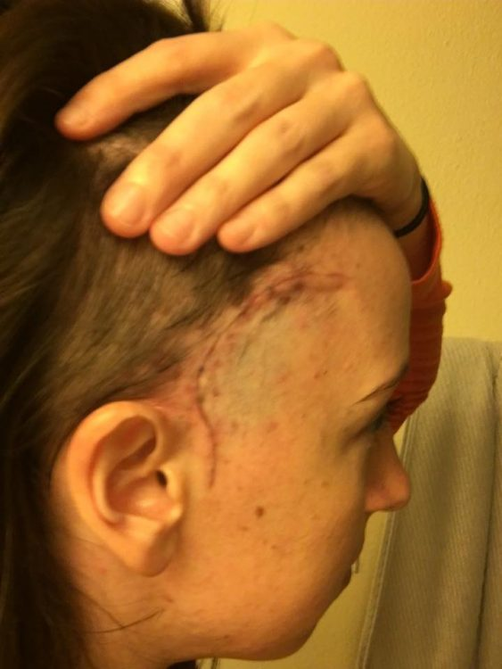 woman with scar on the side of her head after brain surgery