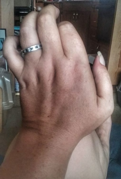 woman whose hands are bent from rheumatoid arthritis