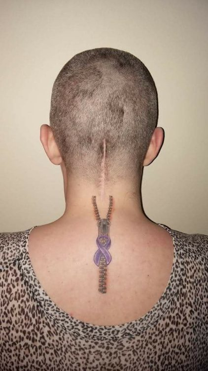 woman with scar on the back of her head/neck from chiari