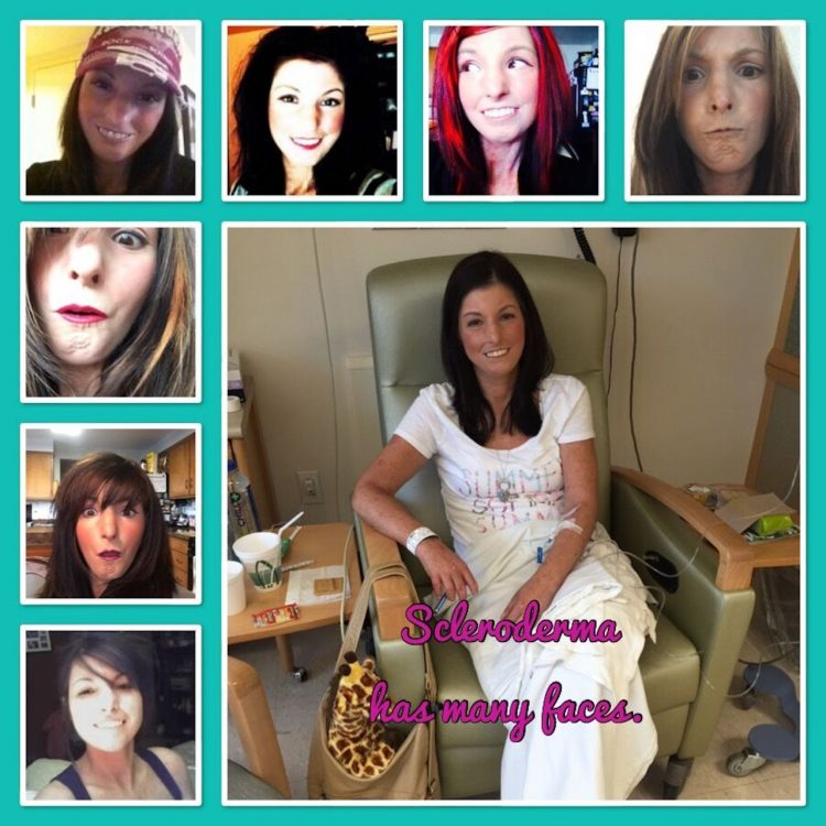 collage of photos of amy gietzen with the caption 'the many faces of scleroderma'