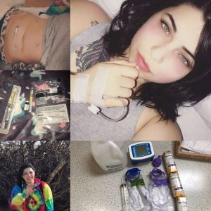 collage of photos of a woman in the hospital with gastroparesis