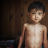 little boy with scar from heart surgery