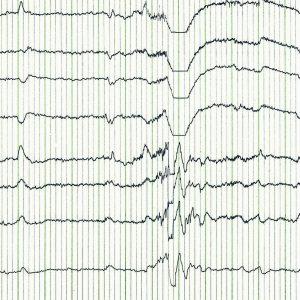 EEG brain wave.
