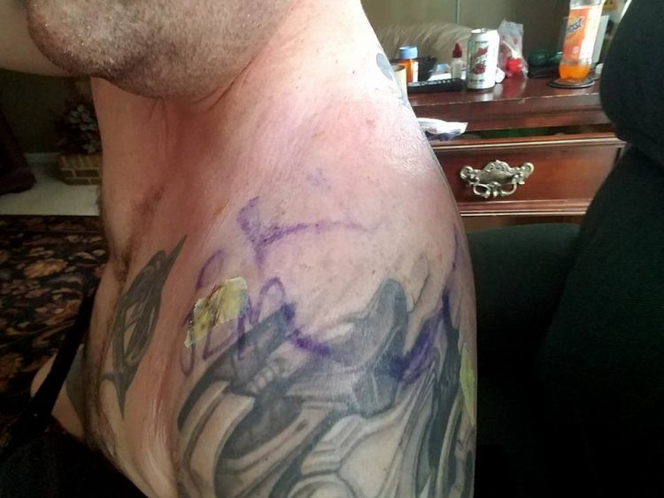 a scar on a man's shoulder surrounded by tattoos