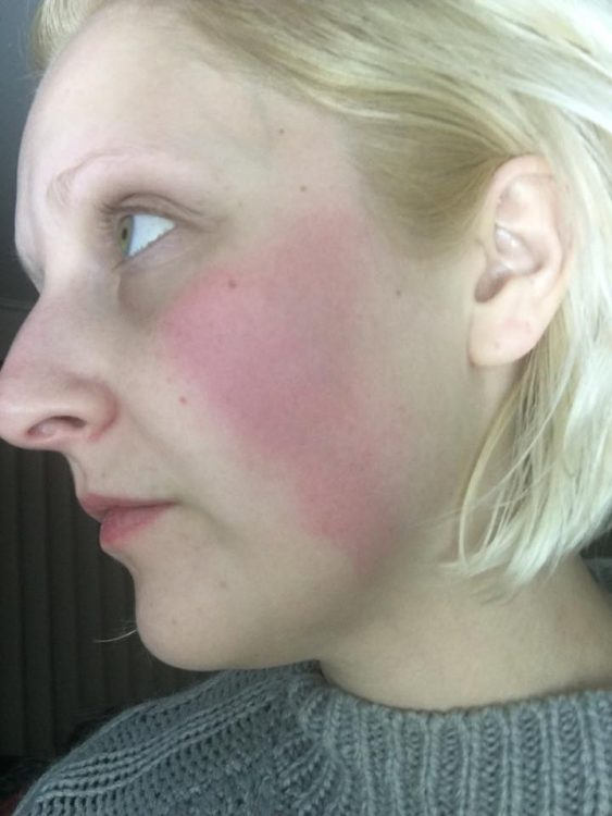 woman with a red, inflamed cheek