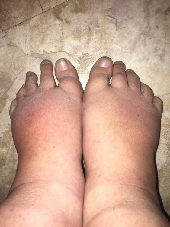 a woman's swollen feet