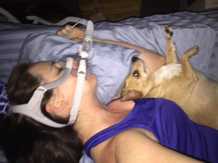woman with a CPAP machine sleeping next to her dog
