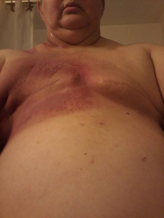 woman's chest after a double mastectomy with burns from radiation treatment