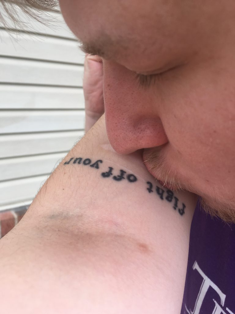 image of man kissing woman's arm with self-harm scars and tattoo
