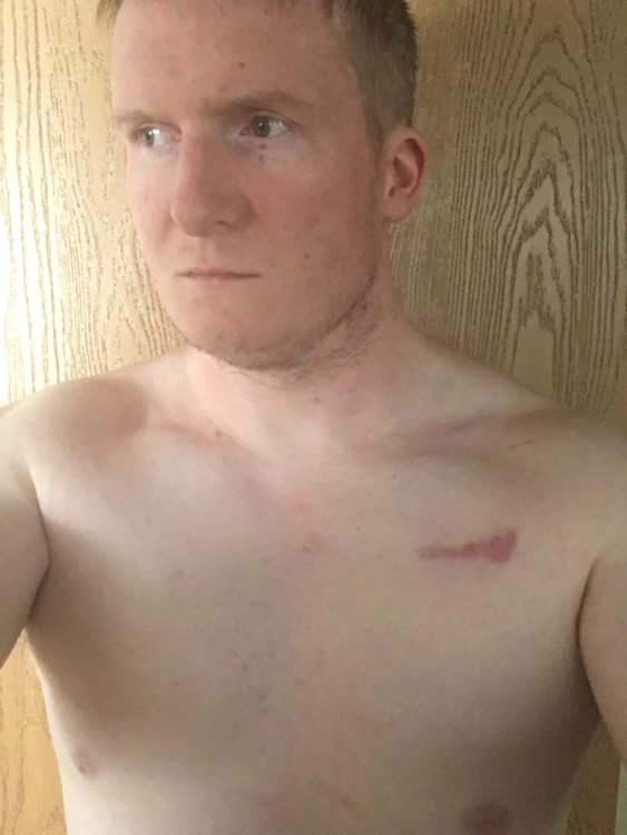 photo of a man with a scar on his chest