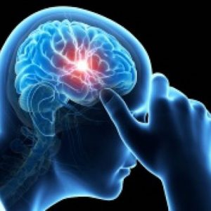 computerized image of a person having a migraine