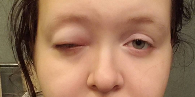 woman with a swollen eye