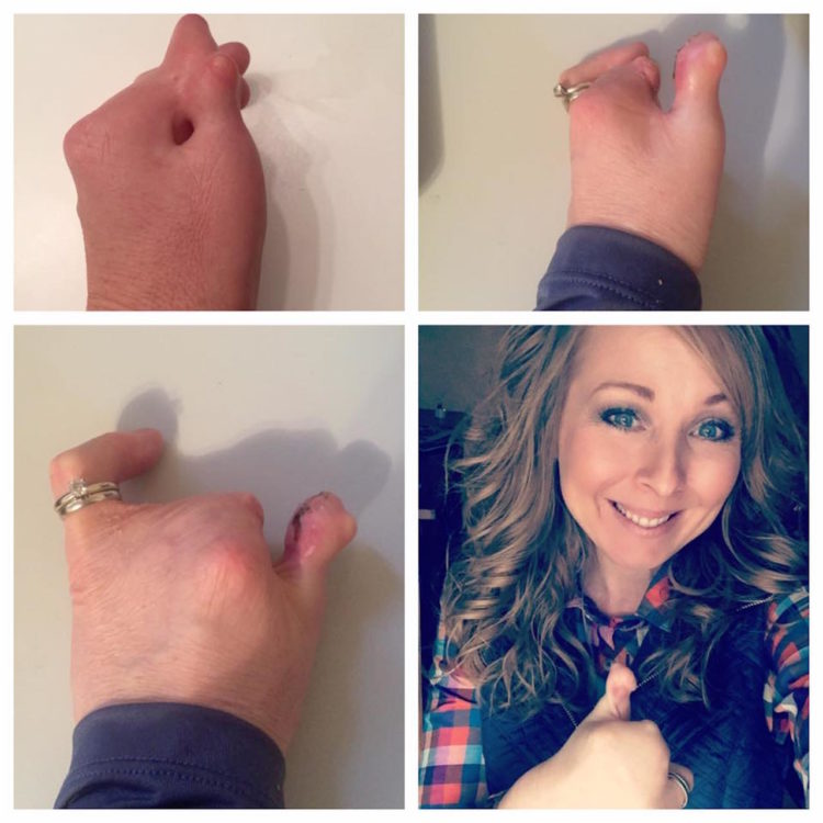 collage of photos of woman before and after getting surgery to give her a thumb