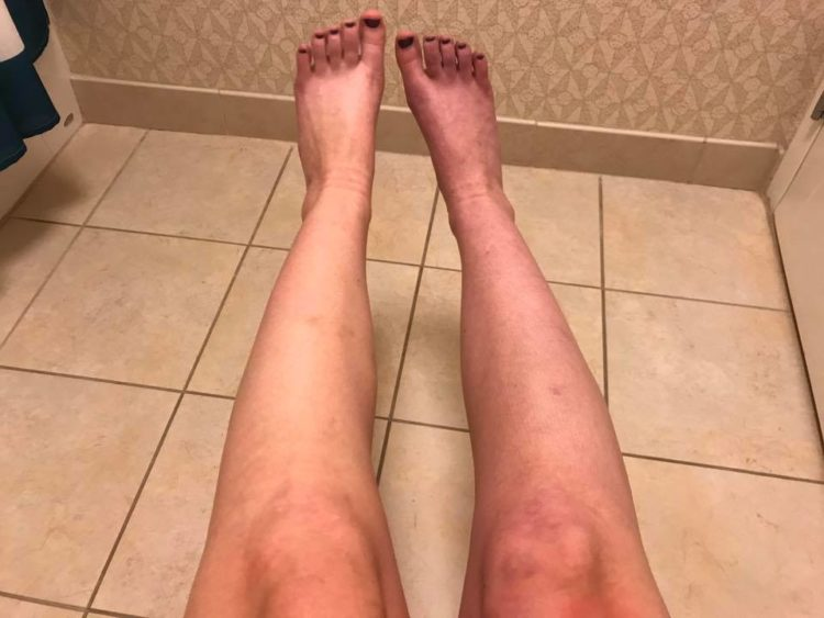 woman's legs with blood pooling