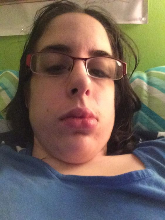woman lying in bed with swollen cheeks