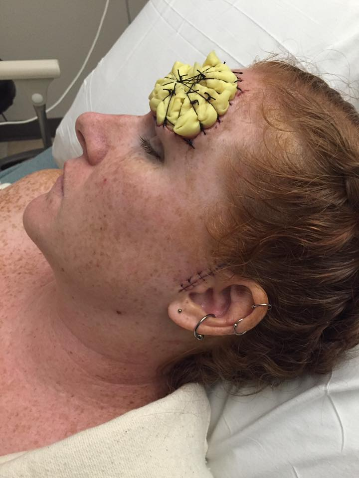 woman with melanoma cancer in hospital bed