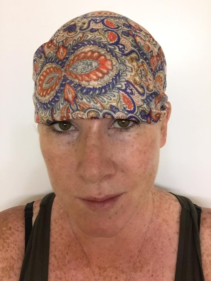 woman with melanoma cancer head wrap