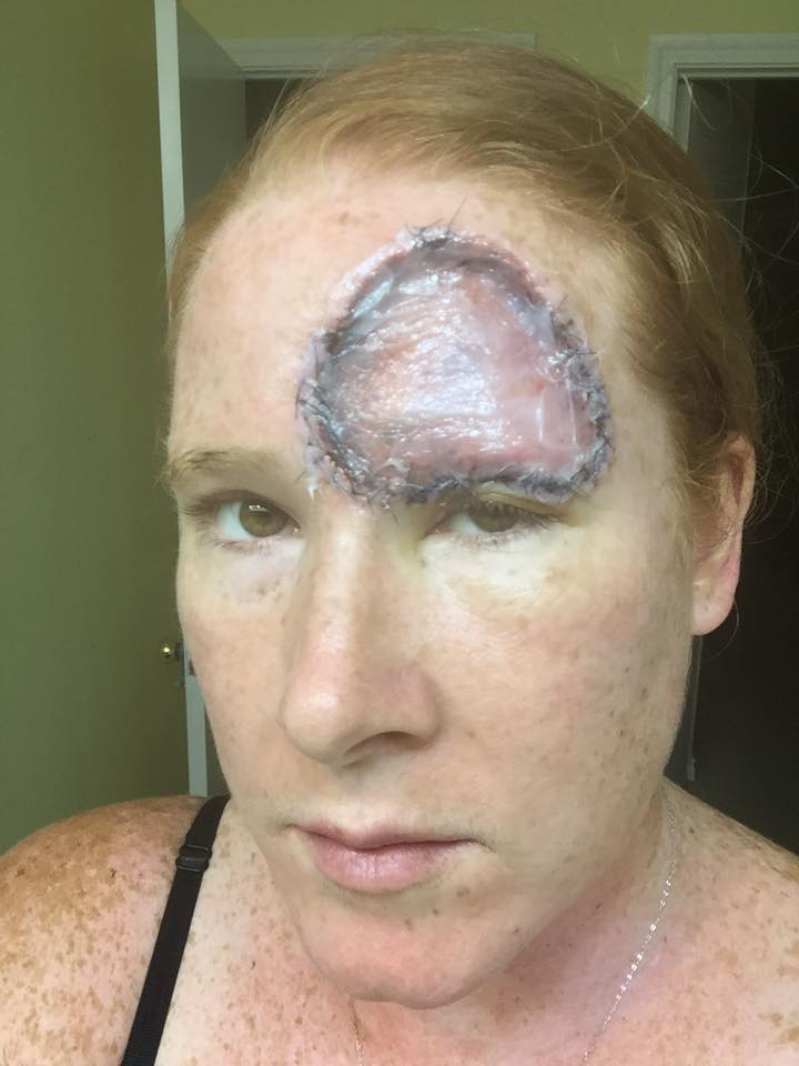 woman with melanoma cancer close up of head scar