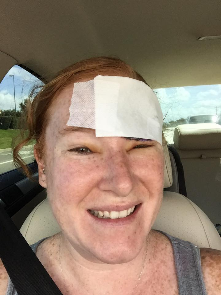 woman with melanoma cancer with bandage on head