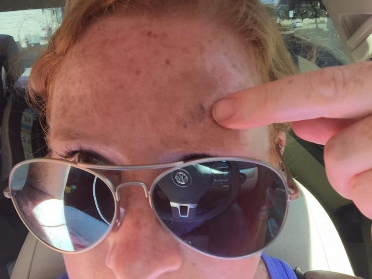 woman with melanoma cancer pointing to mole on forehead