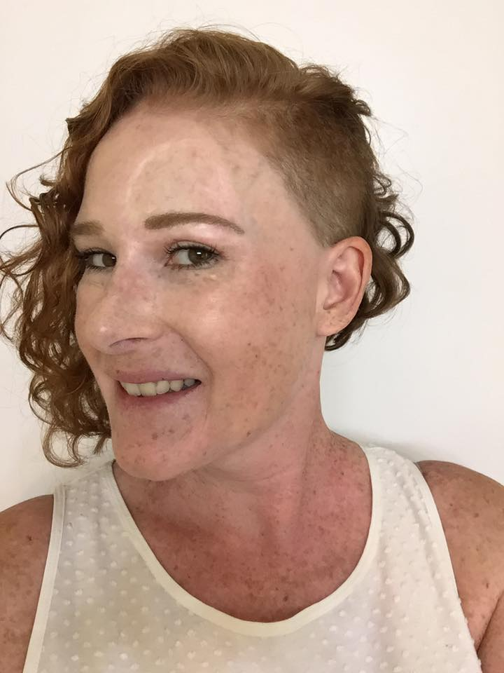 woman with melanoma cancer with cool haircut