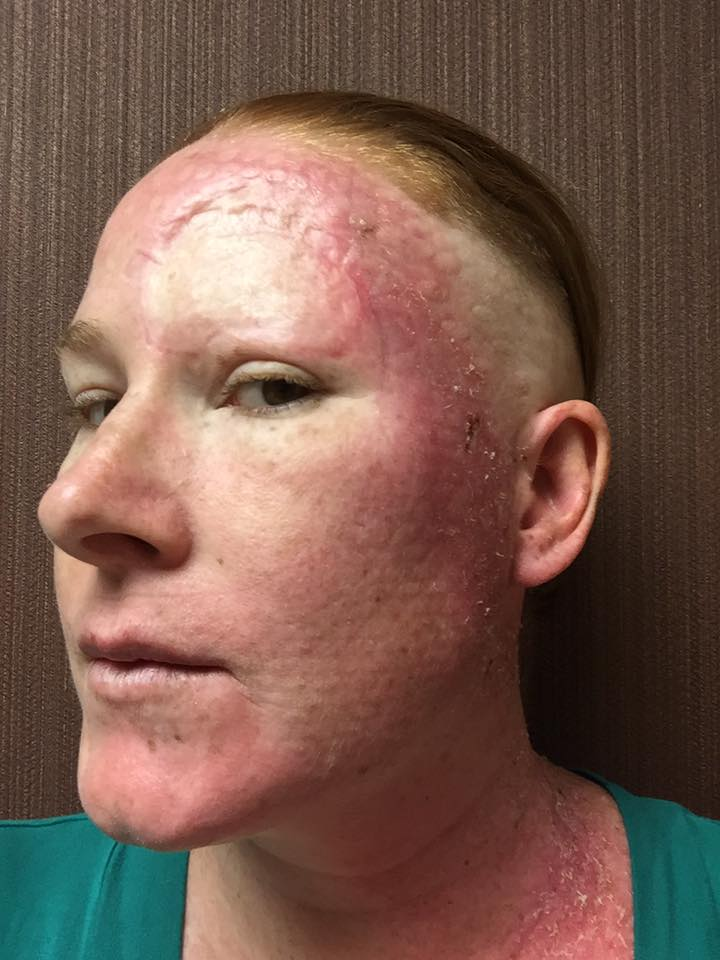 woman with melanoma cancer close up of radiation treatment