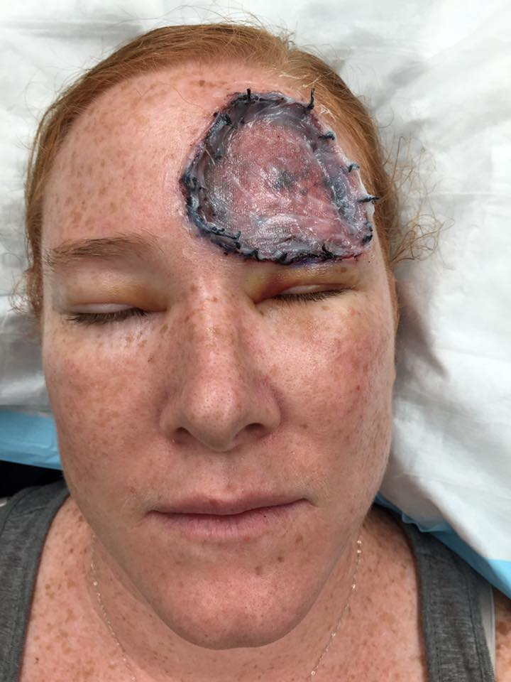 woman with melanoma recovering after surgery