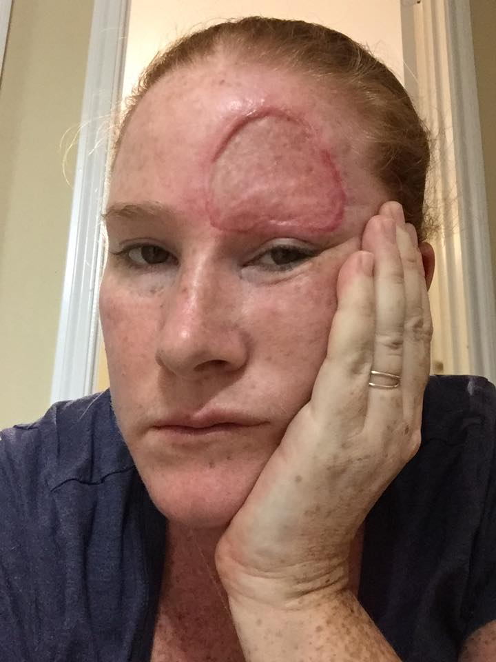 woman with melanoma cancer feeling tired