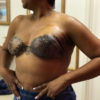 Breast Cancer Tattoo Feature