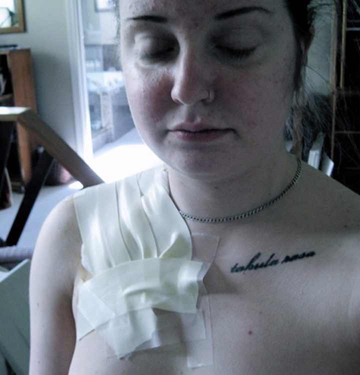 woman during lupus treatment with tape on her chest and a tattoo on her shoulder